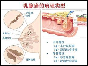 乳腺癌 百科